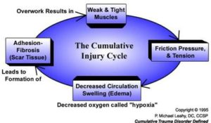 cumulative_injury_cycle_med